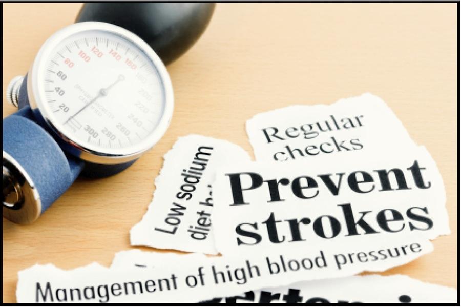 stroke megelőzés